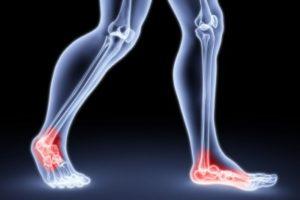 足底腱膜炎2